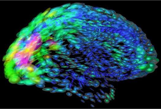 cerebro-loni.jpg