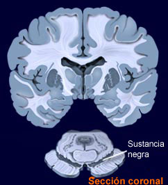 substantia_nigra.jpg